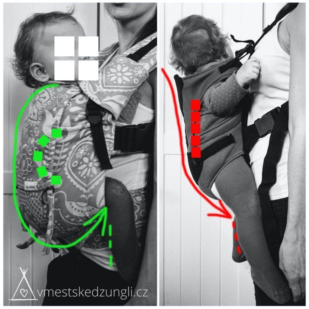Podsazení dítěte v nosítku umožní kolínka výš než zadeček a zakulacená záda do písmene C.