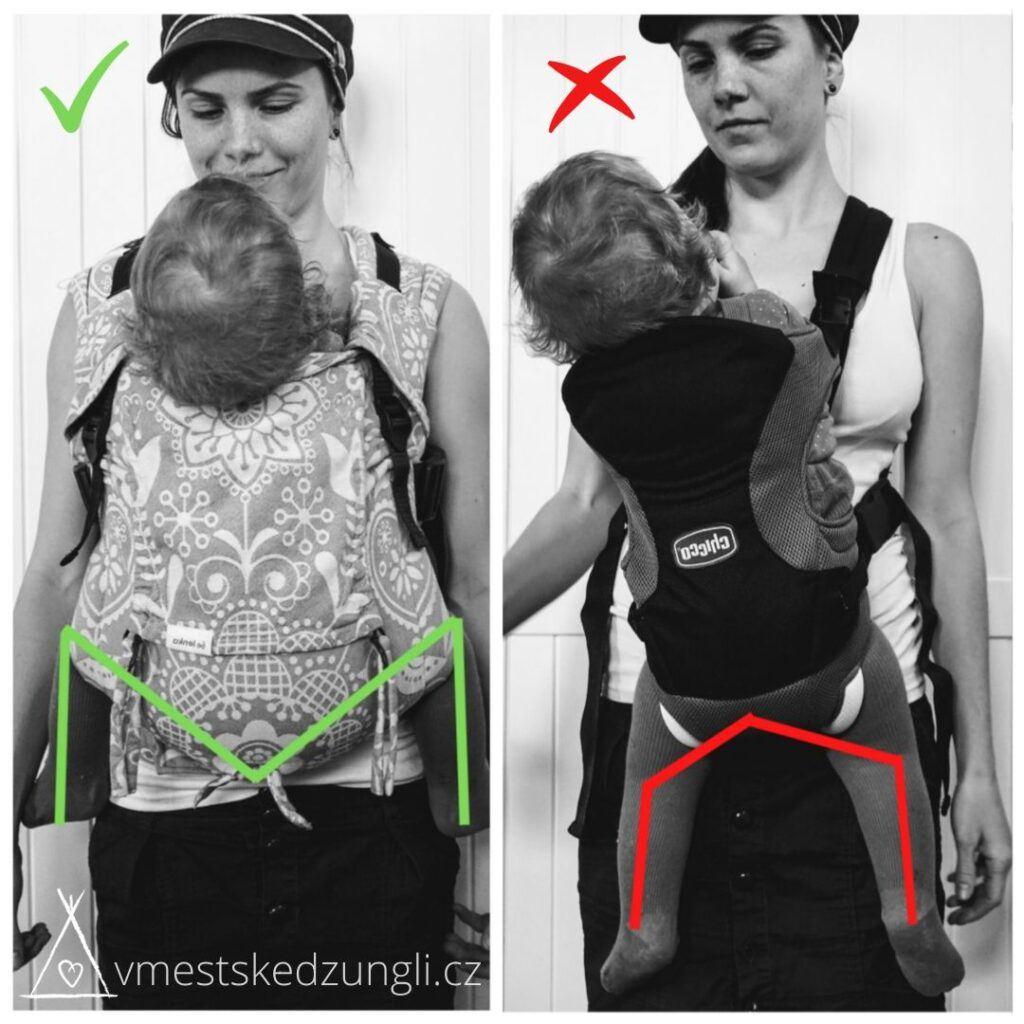 ergonomické nošení dětí a nošení dětí v neergonomickém nosítku